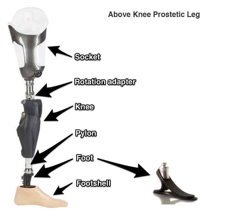 Above Knee Prosthetics